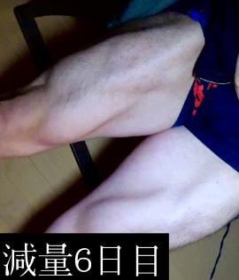 減量6日目の前からの大腿四頭筋収縮写真